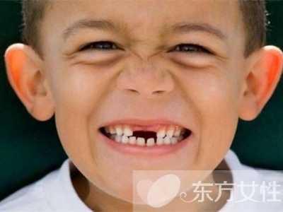 乳牙换牙顺序图 儿童换牙一定要注意这些方面